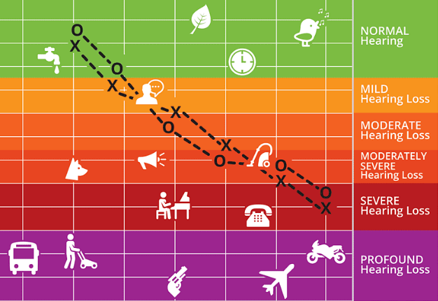 Degrees of Hearing Loss: What Level Are YOU At?
