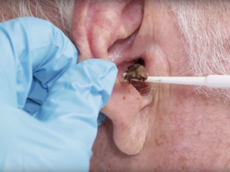 Earwax: How to Prevent Blockages and Buildup